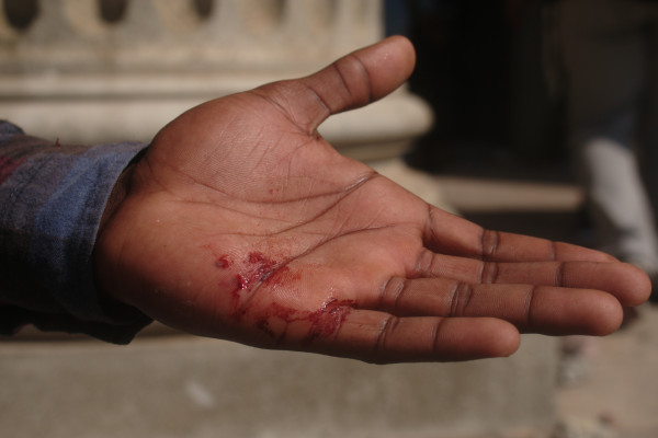 INJURED: The hand of a student who had been hit by one of the hurling rocks thrown by Wits' private security. Photo: Nasya Smith